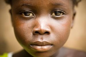 Obwohl Plan International rund 1/4 Mio. Patenmädchen der Verstümmelung überlässt, sagen sie den Spendern: Plan schützt Mädchen
